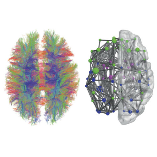 Abnormal Structural Brain Connectome in Preclinical Alzheimer published in Cerebral Cortex