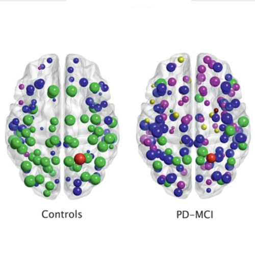 Aberrant Cerebral Topology in Early Parkinson published in Human Brain Mapp.