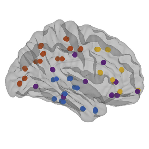 Altered Brain Network in Amyloid Pathology published in Neurobiol. Aging
