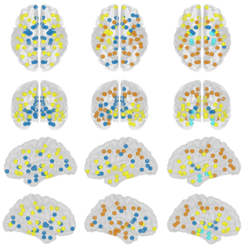 Subtypes of Brain Atrophy in Alzheimer's Disease published in Front. Neurol.